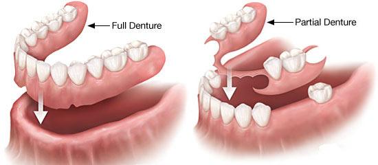 metal free dentures