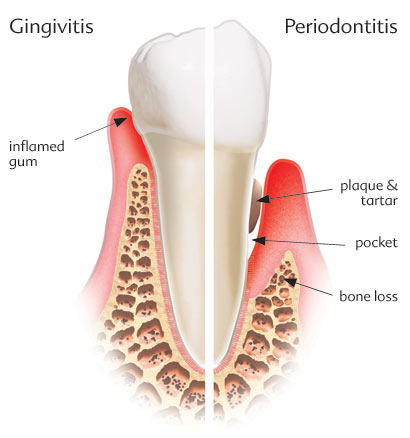 gingivitis_periodontal_pocket