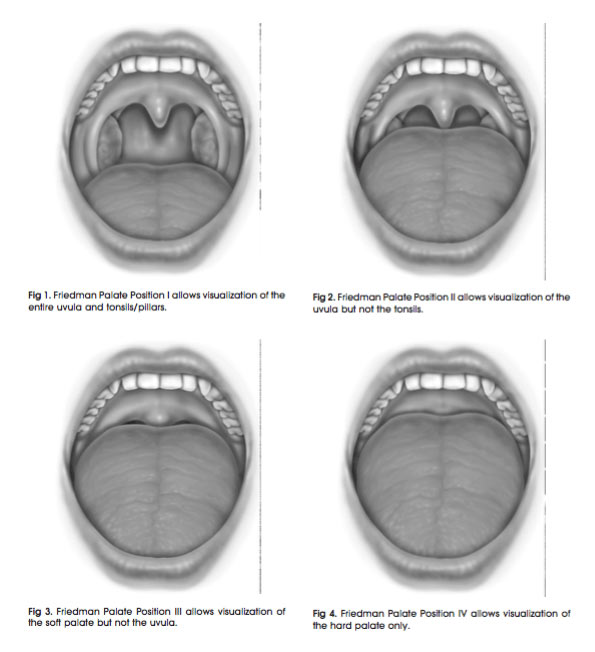 friedman tongue position snoring treatment