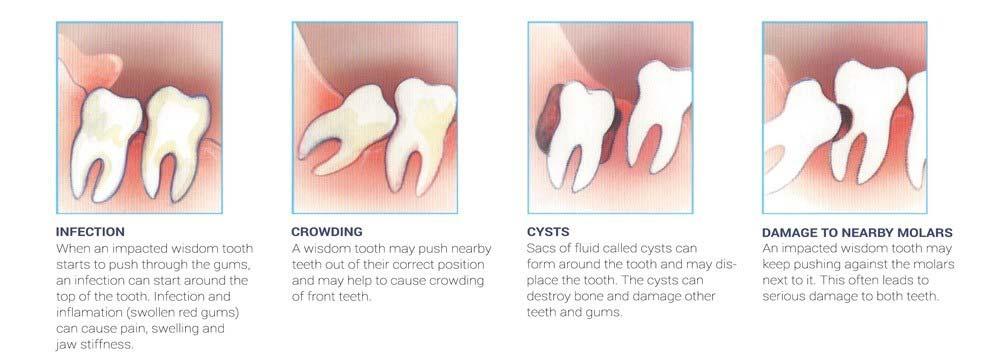 impacted wisdom teeth removal