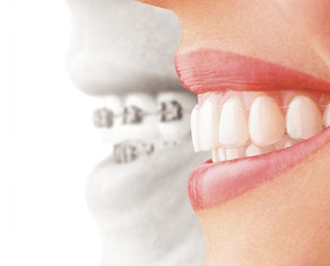 invisalign melbourne south yarra