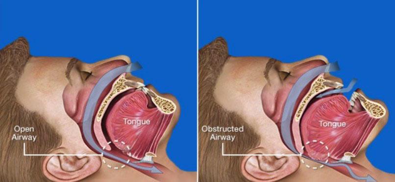 obstructive sleep apnoea snoring treatment