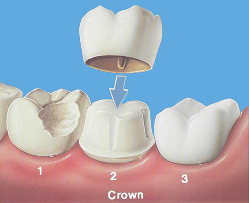 dental crowns melbourne