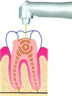 laser_root_canal