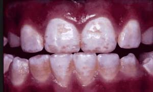 dental fluorosis 1