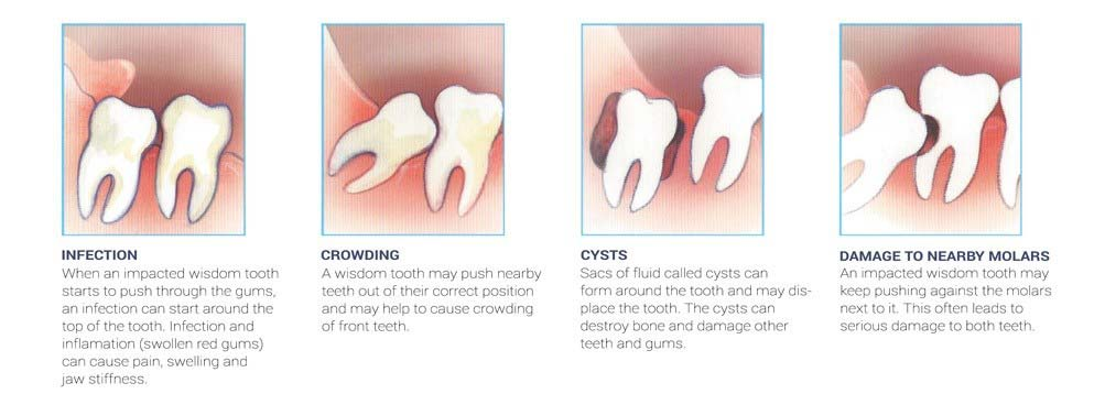 impacted wisdom teeth removal